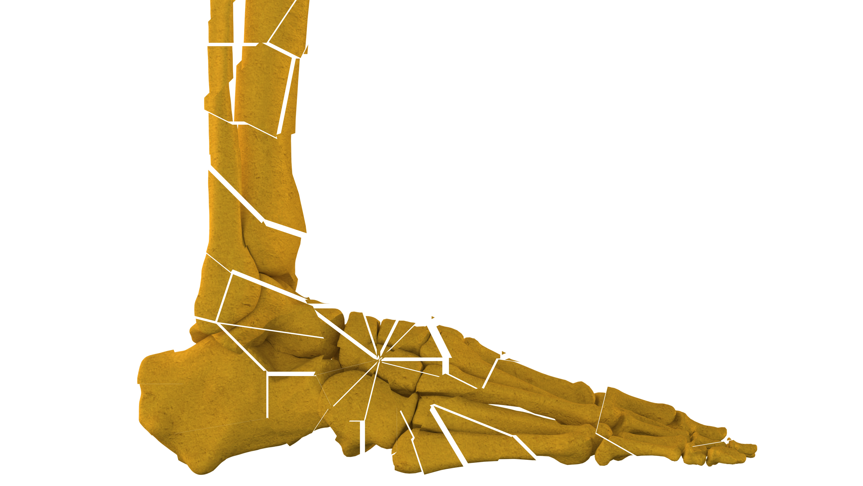 pieds cassés